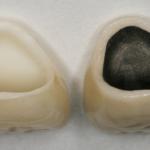 Chân răng bị đen – Nguyên nhân và 3 cách khắc phục hiệu quả