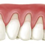 Tụt nướu răng: Nguyên nhân và phương pháp phòng tránh